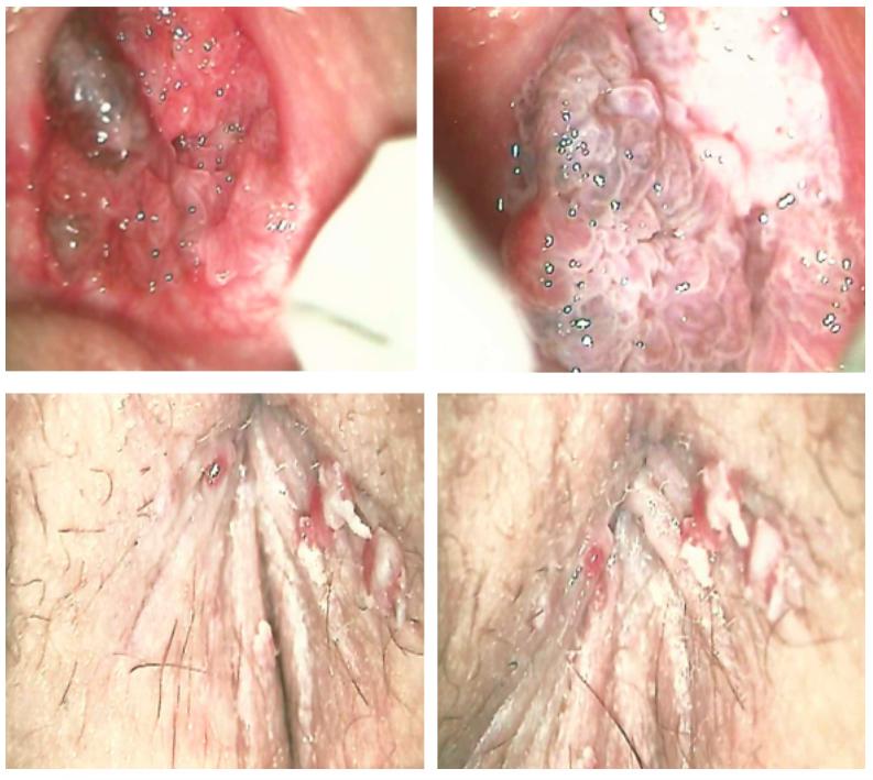 Condiloame în locuri intime de sex feminin - Infectia cu HPV din perspectiva dermatologului