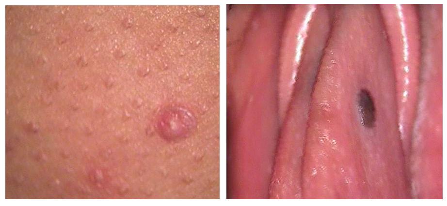 Papiloma virus kod dece, Helmintox internetaptieka
